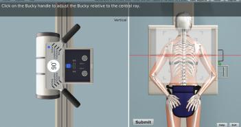 Screenshot from SIMTICS radiography simulation